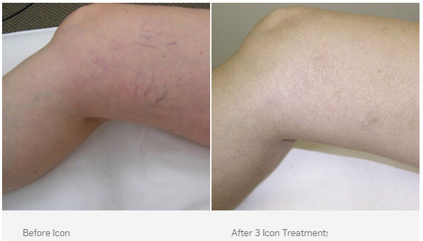 Icon IPL Laser Treatments